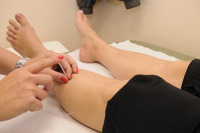 Acupuncture - définition